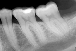 Aerona provides dental x-ray services
