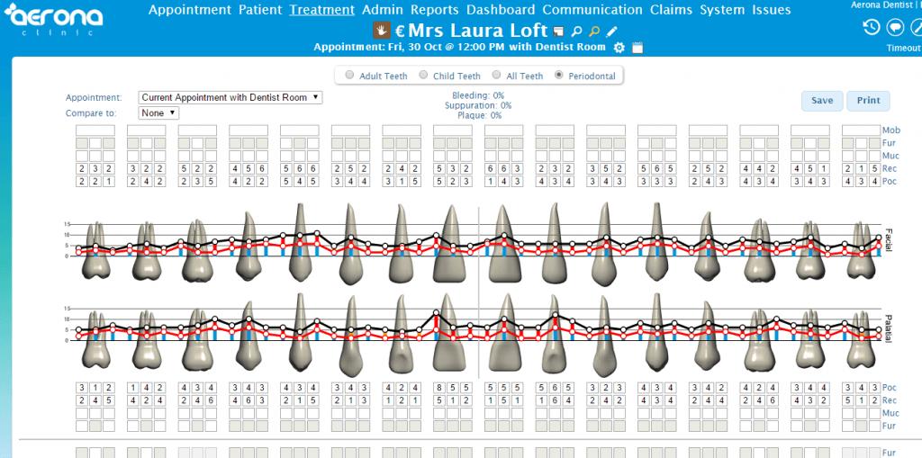Full Periodontal Charting